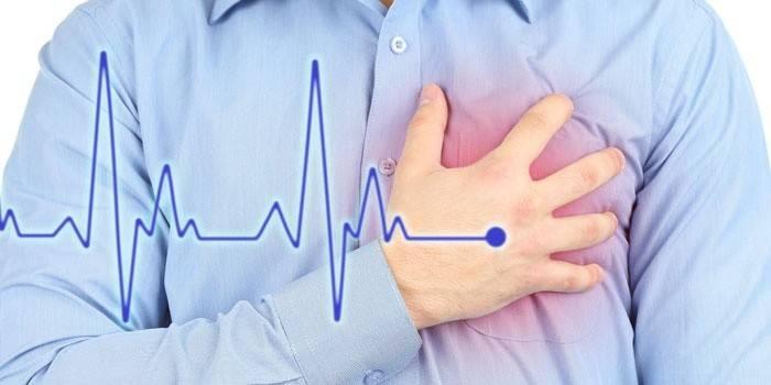 Стенокардія - симптоми і явні ознаки нападу у жінок і чоловіків