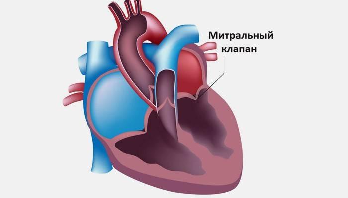 Пролапс мітрального клапана 1 ступеня з регургітацією: симптоми і лікування