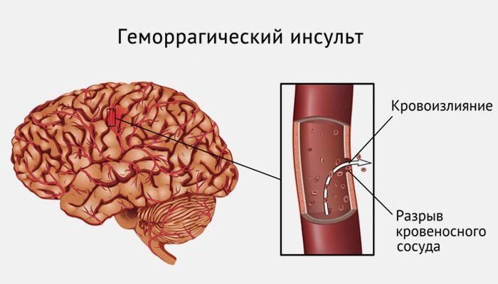 Геморагічний інсульт головного мозку - прогнози, лікування і наслідки, відео