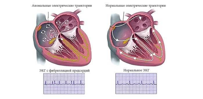 Миготлива аритмія: симптоми і лікування серця, причини хвороби