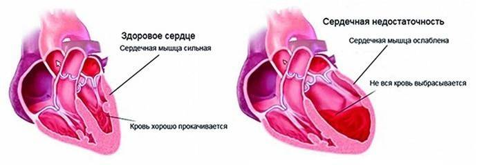 Симптоми серцевої недостатності гострої і хронічної у жінок