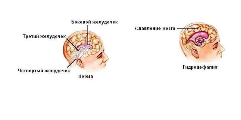 Гіпертензивна енцефалопатія головного мозку - симптоми, види і стадії хвороби, медикаментозна терапія