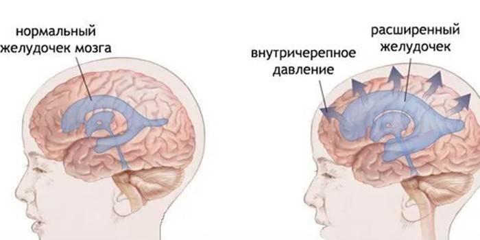 Гіпертензійний синдром у дорослих і дитини - лікування і симптоми вродженого або набутого
