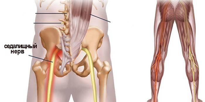 Сідничний нерв - ознаки і причини захворювань, діагностика, терапія та наслідки