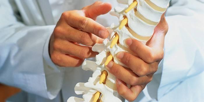 Що таке спондилоартроз - початкові прояви захворювання, симптоми і ступеня, діагностика і лікування
