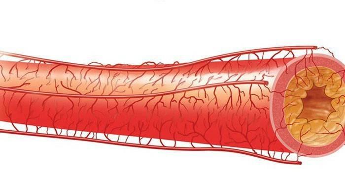 Церебральний атеросклероз судин, симптоми, лікування та наслідки захворювання