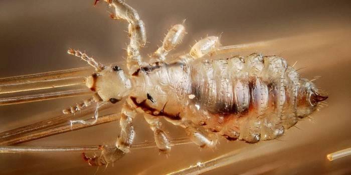 Внутрішньоклітинні паразити - назви видів, як відбувається розмноження в організмі людини, кошти від паразитичних мікроорганізмів