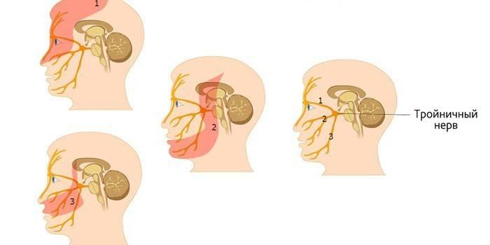 Невралгія трійчастого нерва - причини і симптоми, лікування медикаментозними і народними засобами