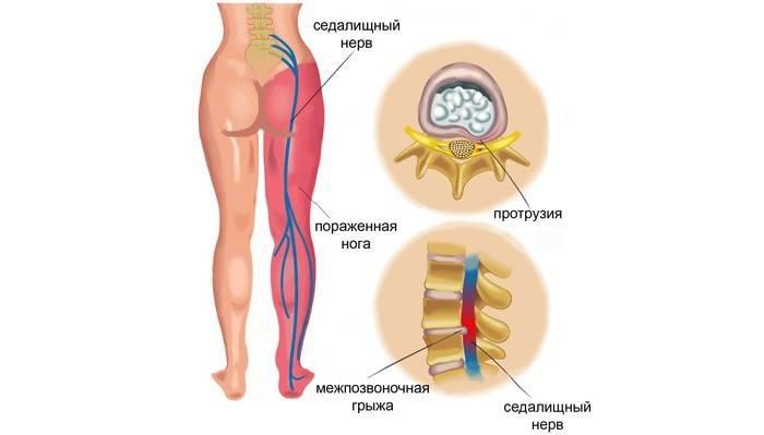 Защемлення сідничного нерва: симптоми і лікування в домашніх умовах