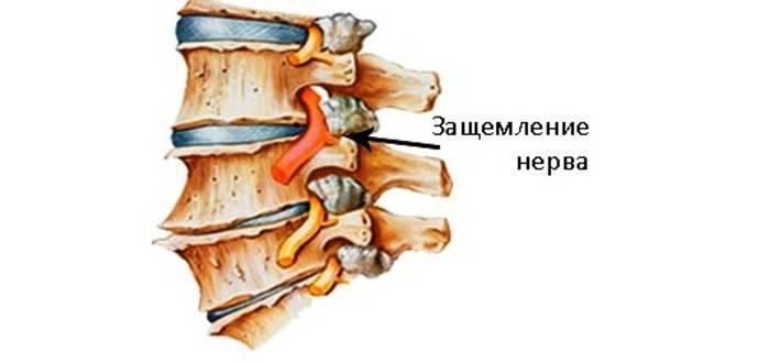 Защемлення нерва в шийному відділі хребта: симптоми і лікування