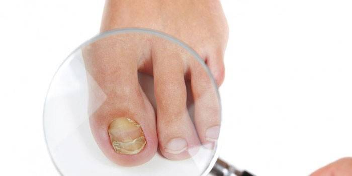 Оцет проти грибка нігтів на ногах - ефективні рецепти народної медицини з яйцем, содою або гліцерином