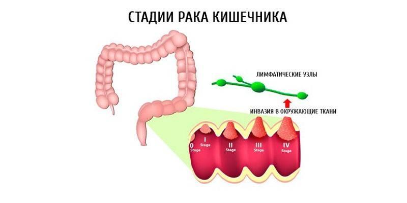 Рак тонкого кишечника - симптоми і стадії