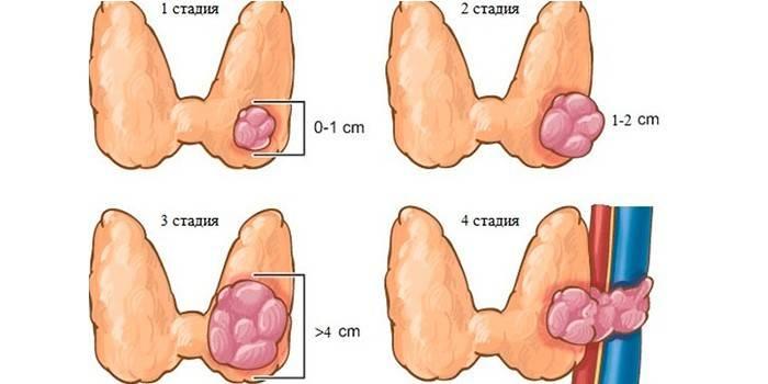 Стадії раку - методи визначення, діагностичні дослідження і аналізи, прояви та терапія