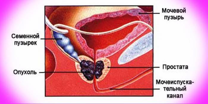 Рак простати у чоловіків: ознаки, стадії і діагностика онкології