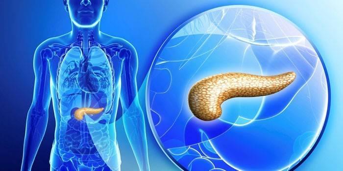 Рак підшлункової залози: ознаки, як лікувати злоякісну пухлину