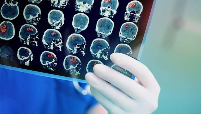 Симптоми пухлини головного мозку на ранніх стадіях у дорослих і дітей