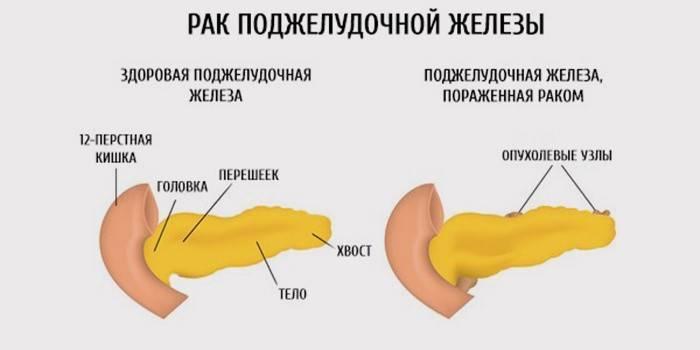Перші симптоми раку підшлункової залози: ознаки та діагностика
