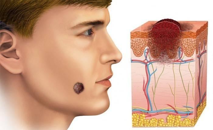 Базаліома шкіри обличчя: симптоми, лікування народними засобами і видалення