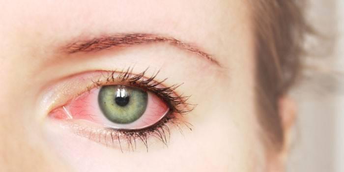 Гній в очах: причини появи виділень, засоби для лікування