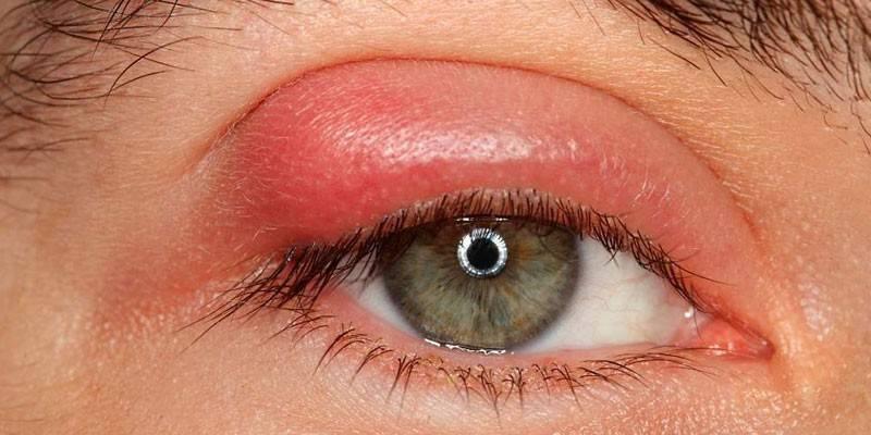 Фурункул на оці - чому з'являється і як вилікувати хірургічно, медикаментами або народними способами