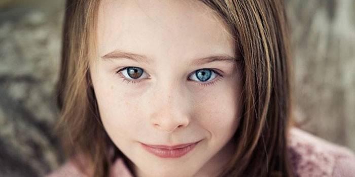 Гетерохромія - різний колір райдужної оболонки очей, причини виникнення і методи лікування
