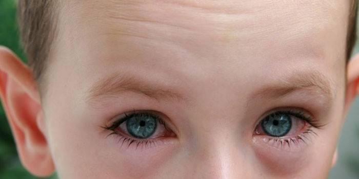 Як зняти набряк очей швидко в домашніх умовах
