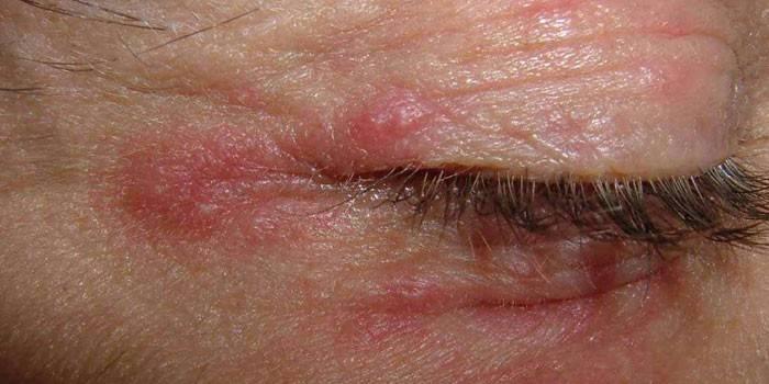 Алергічний дерматит на очах: причини і симптоми, лікування реакції лікарськими препаратами і народними засобами