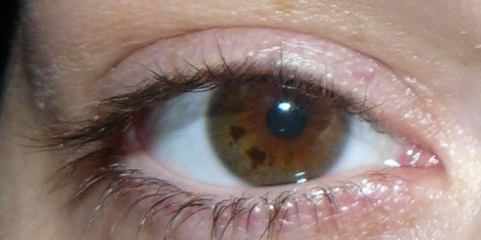 Чорні точки в очах - що це таке: чому з'являються, симптоматика захворювання, як позбутися від плям