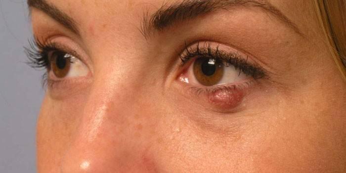 Халязіон: симптоми, діагностика та лікування очної хвороби у дітей і дорослих, операція і народні засоби для видалення освіти