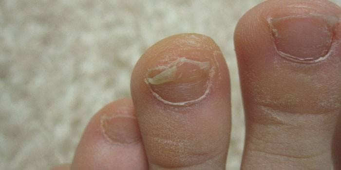 Грибок нігтів у дитини: як лікувати