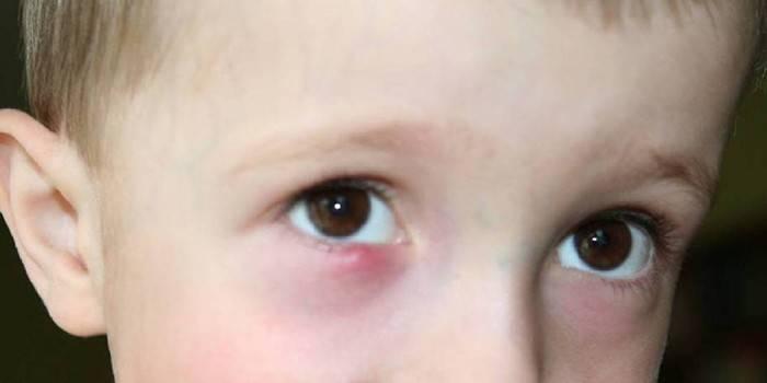 Гнояться очі у дитини - чим промити і як лікувати медикаментозними або народними засобами