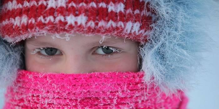 Алергія на холод: як проявляється і як виглядає на руках і особі, народні засоби від подразнень на шкірі