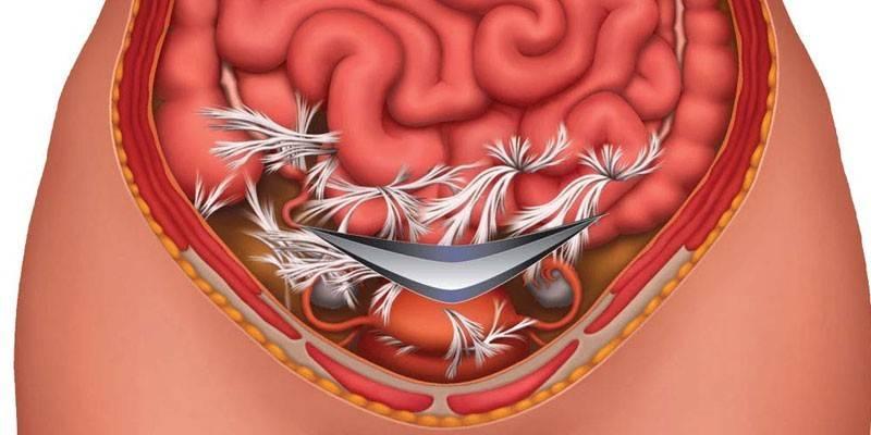 Лікування спайок кишечника без операції в домашніх умовах гомеопатією і дієтою