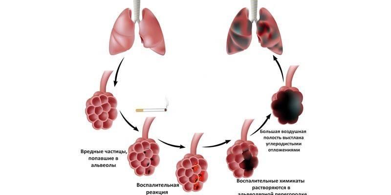 Емфізема легень - симптоми за формами, зовнішні прояви і диференціальна діагностика