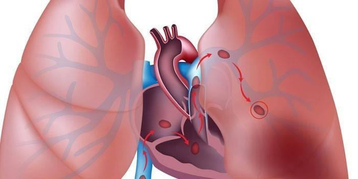 Легенева гіпертензія 1 ступеня - що це таке, класифікація, причини, ознаки, як лікувати та прогнози