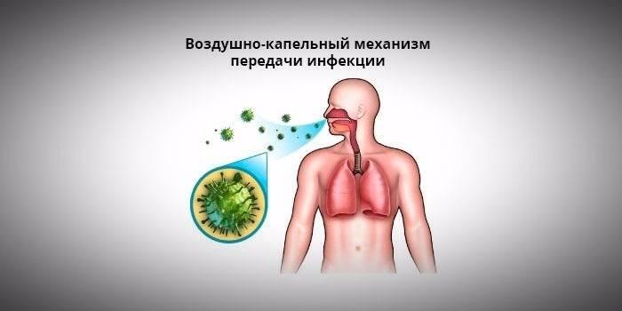 Грибкова пневмонія - збудники захворювання, перші прояви у дітей і дорослих, методи лікування