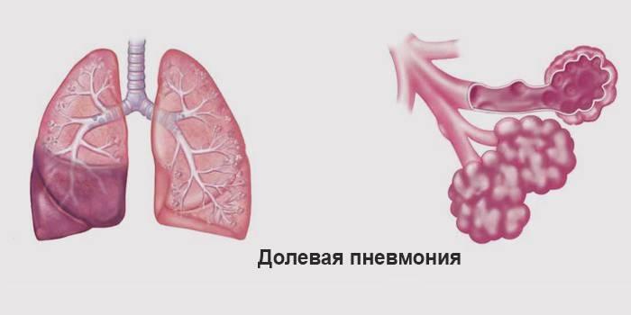 Крупозна пневмонія - що характерно для діагнозу: основний збудник, стадії та діагностика гострого інфекційного захворювання