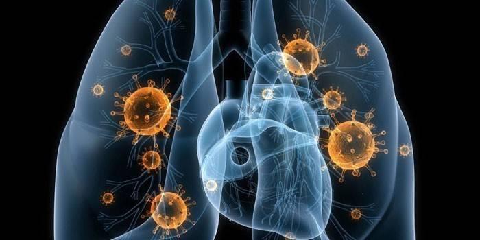 Лікування пневмонії у домашніх умовах і в стаціонарі - лікарська терапія та народні рецепти