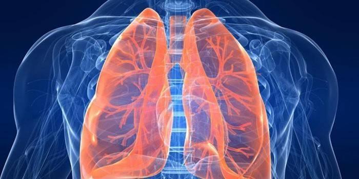 Емфізема легень - що це таке, як лікувати