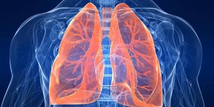 Що таке саркоїдоз легенів: як лікувати хворобу