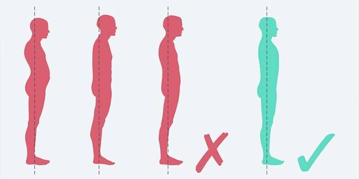 Ефективне лікування остеохондрозу в домашніх умовах: як позбавитися від болю
