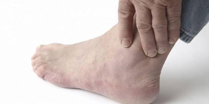 Подагра у чоловіків - ознаки, небезпечні наслідки, що провокує загострення і методи терапії