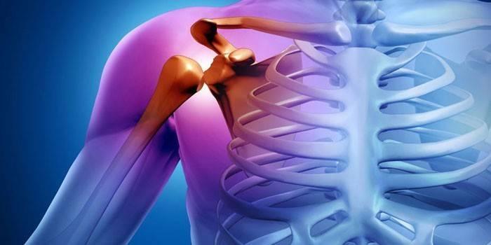 Артроз плечового суглоба - симптоми і лікування захворювання