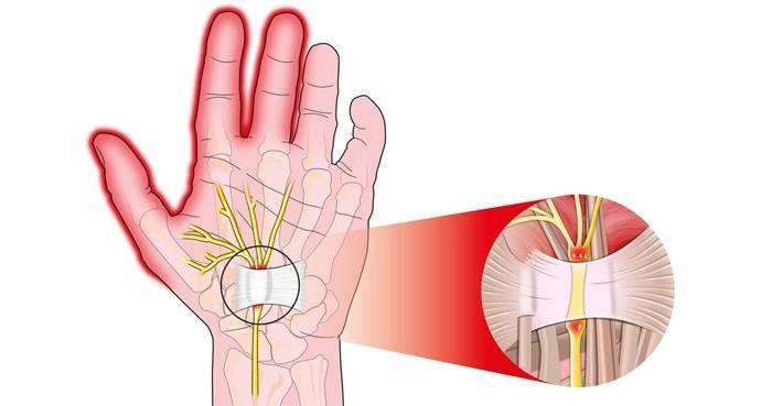 Оніміння пальців лівої руки: мізинця, безіменного, великого та середнього