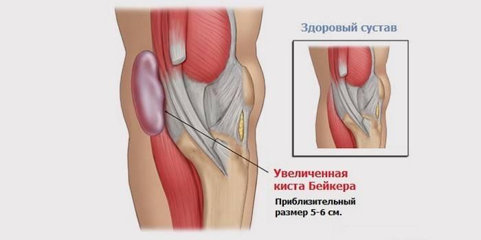 Кіста Бейкера колінного суглоба: причини, народне лікування та операція