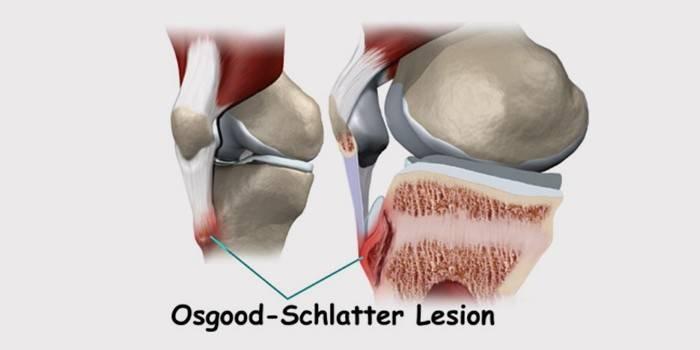 Хвороба Шляттера Осгуда у підлітків і дітей: лікування колінних суглобів