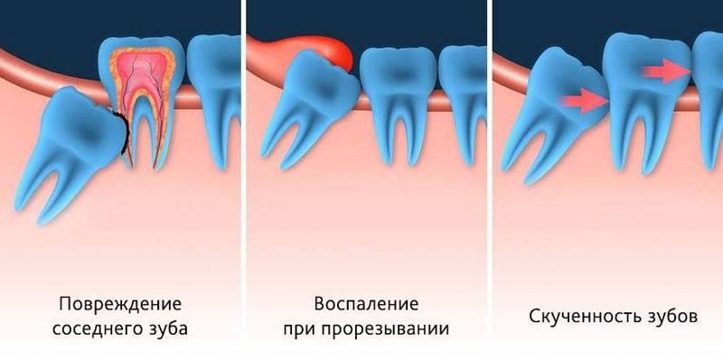 Видалення зуба мудрості верхньої і нижньої щелепи