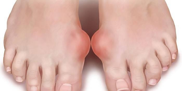 Подагра - лікування в домашніх умовах методами народної медицини та лікарськими засобами