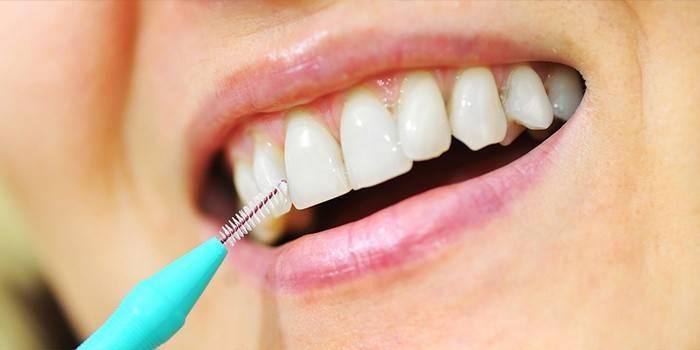 Йоржики для зубів і брекетів: як вибрати і користуватися щіткою