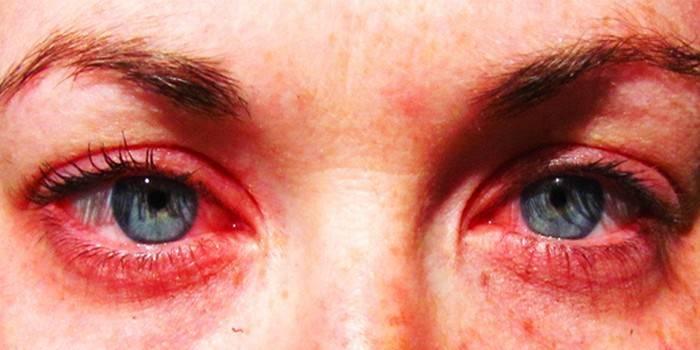 Алергія на алкоголь - причини і симптоми, як позбавитися від появи реакцій